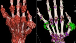 Dual-energy computed tomography (DECT) is a new diagnostic tool for gout