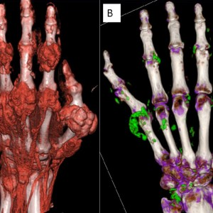 (A) DECT image showing a digital reconstruction of the hand of a person with late stage out. (B) Uric acid crystal deposits are shown in green.  Image is from original research article by Baer, A, et al. BMC Musculoskelet Disord. 2016.
