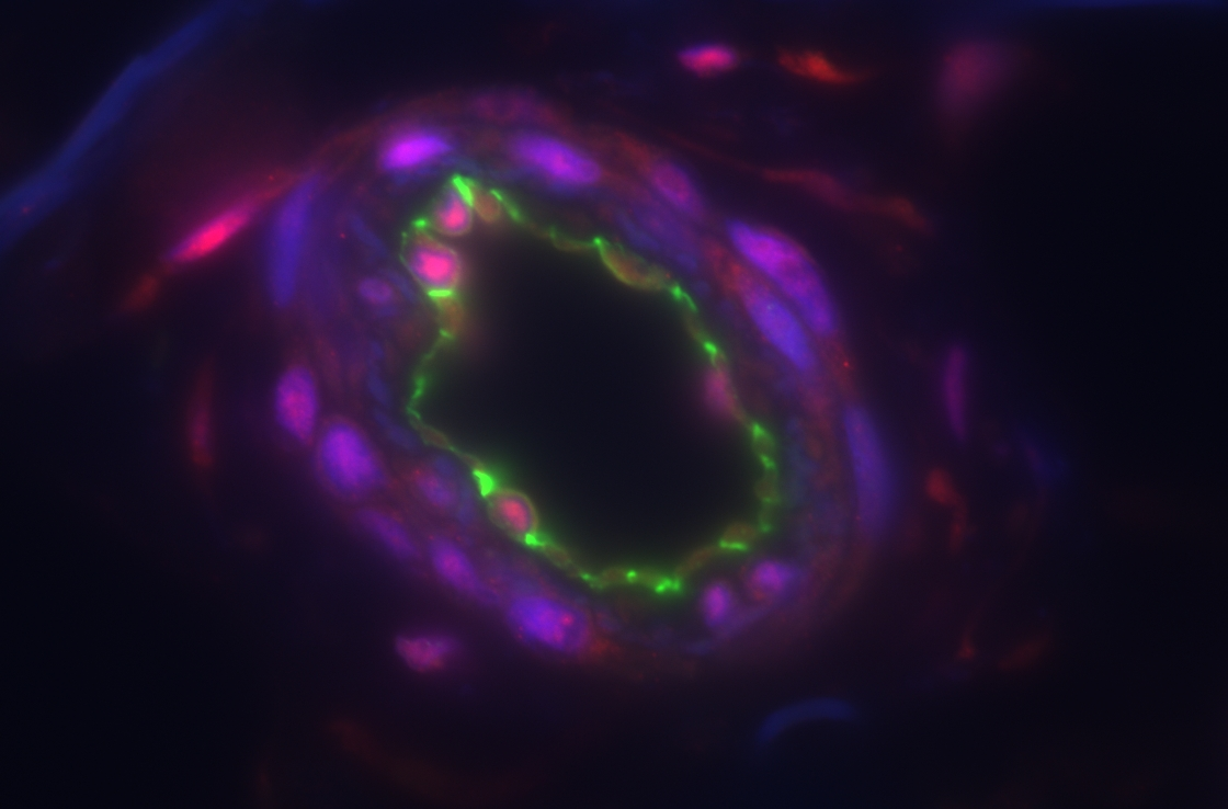 Blood vessels may be targets of the immune system in patients with scleroderma