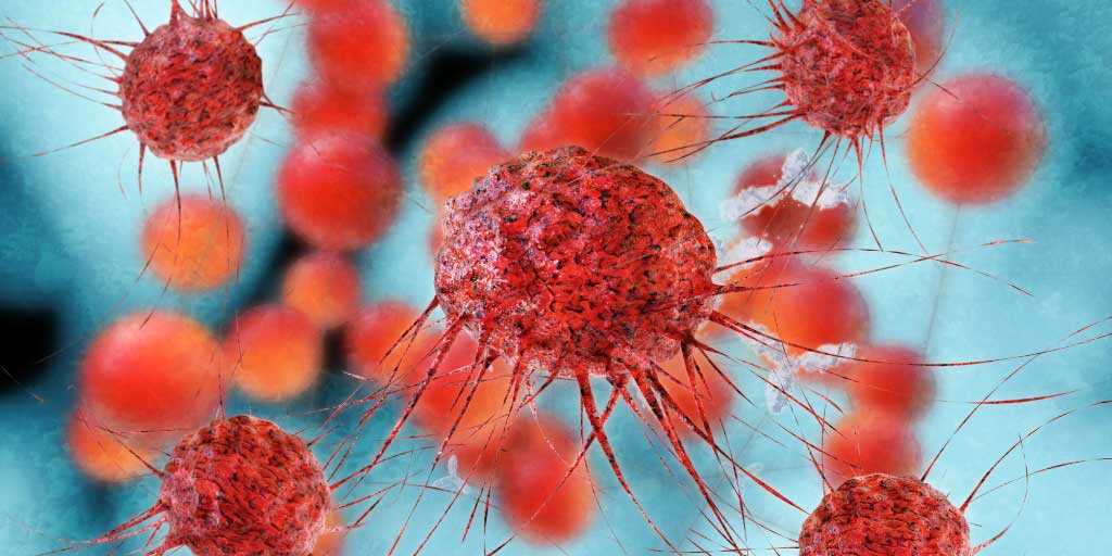 New cancer therapies linked to inflammatory arthritis and sicca syndrome
