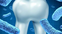 Gum disease linked to rheumatoid arthritis