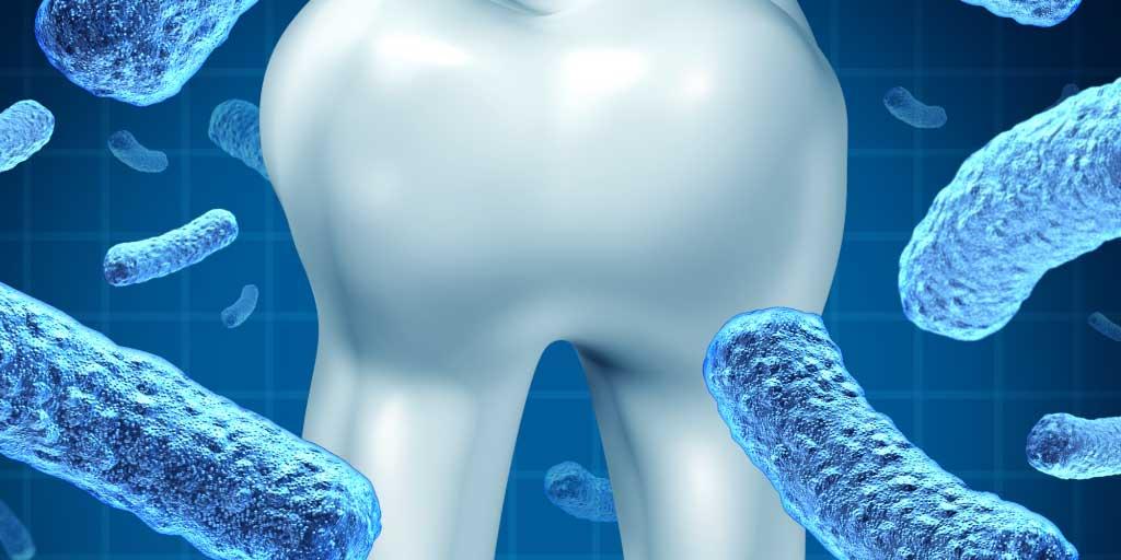 Gum disease linked to rheumatoid arthritis