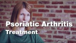 Treating Psoriatic Arthritis