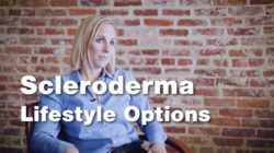Living with Scleroderma