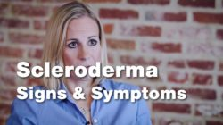 Signs and Symptoms of Scleroderma