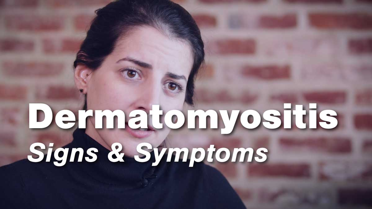 Dermatomyositis – Signs & Symptoms | Johns Hopkins