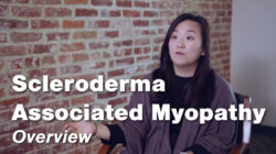 Scleroderma Associated Myopathy – Overview | Johns Hopkins