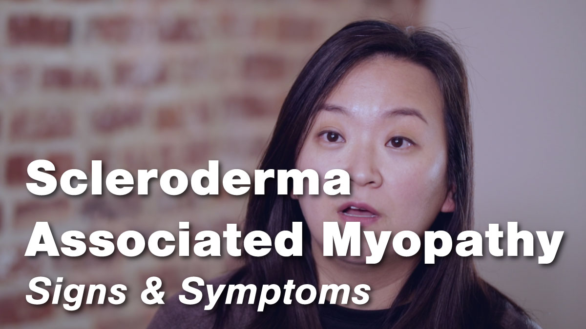 Scleroderma Associated Myopathy – Signs & Symptoms