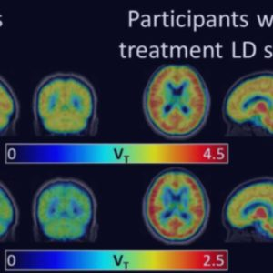 PET images show elevated cerebral glial activation in Lyme disease patients compared to controls