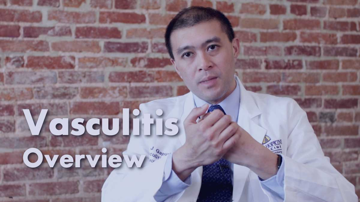 Vasculitis – Overview | Johns Hopkins Rheumatology