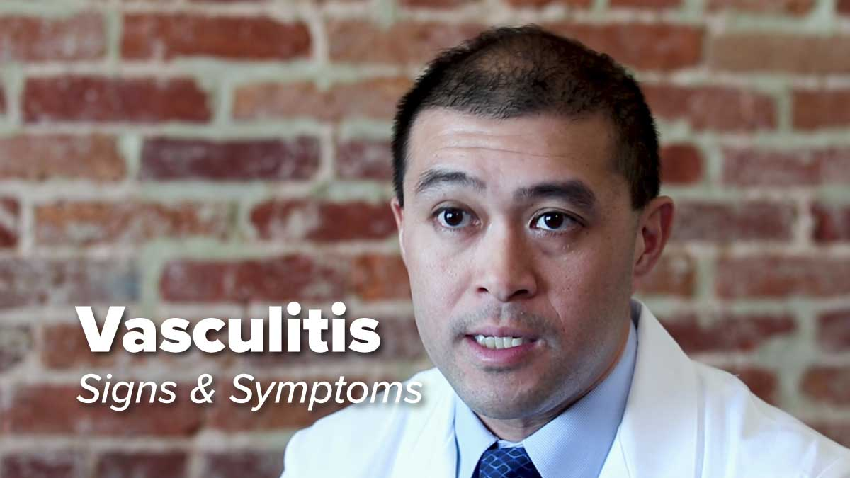 Vasculitis – Signs & Symptoms | Johns Hopkins Rheumatology